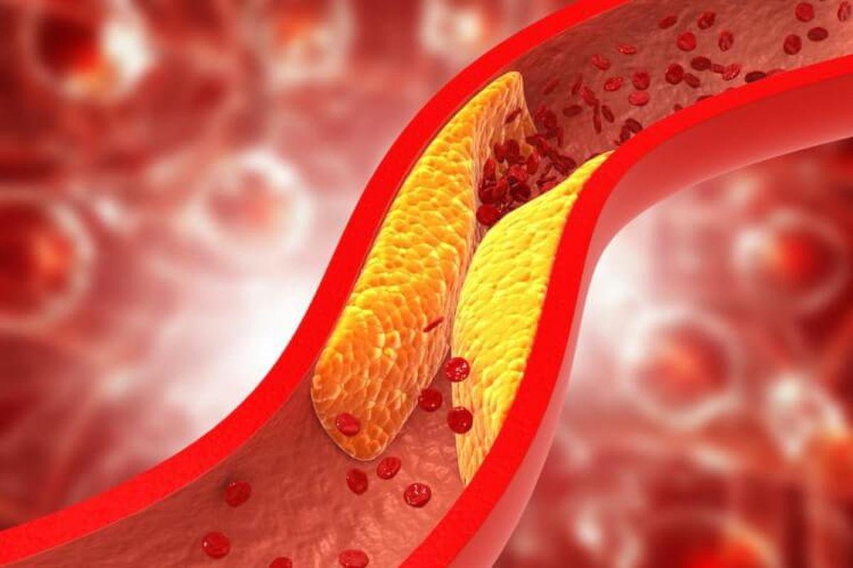 Tratamentul dislipidemiilor: strategii actuale de reducere a riscului cardiovascular